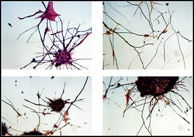 这种细胞能够同时表达神经元和星形胶质细胞的标志物